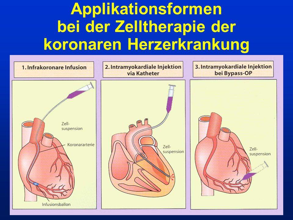 Applikationsformen bei der Zelltherapie der koronaren Herzerkrankung