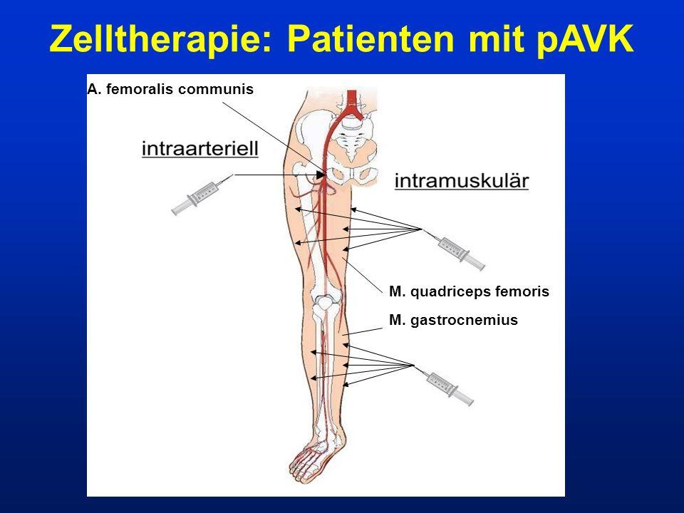 A. femoralis communis M. quadriceps femoris M. gastrocnemius Zelltherapie: Patienten mit pAVK
