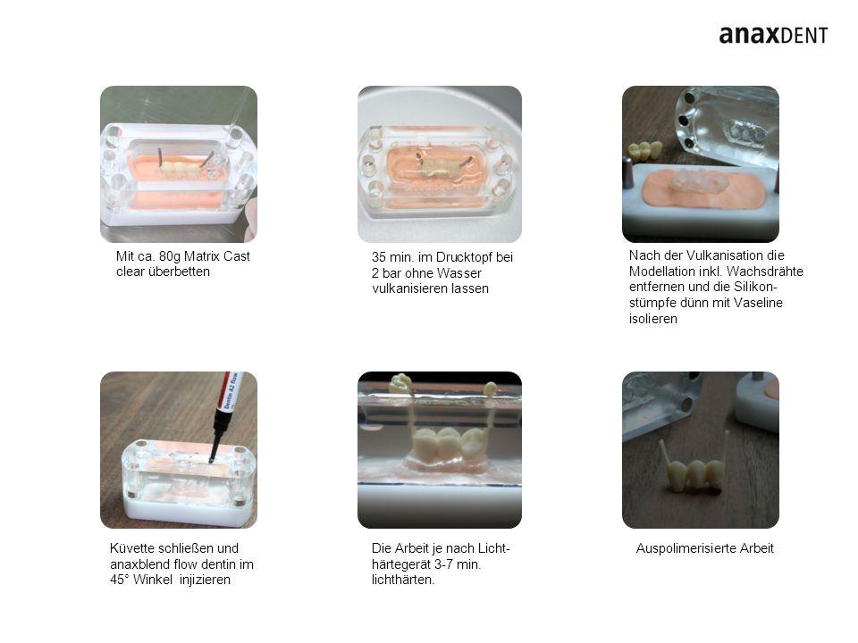 Deckel schließen und Schneideanteile nachinjizieren Deckel abheben, Injektionskanälen entfernen und fertigstellen Schneideanteile reduzieren Mit anaxdent bonding fluid benetzten, lichthärten und mit anaxblend stains individualisieren