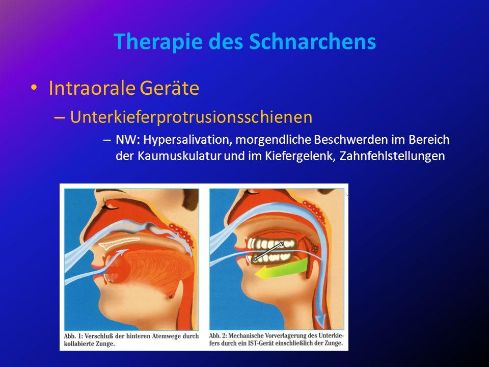Therapie des Schnarchens Intraorale Geräte – Unterkieferprotrusionsschienen – NW: Hypersalivation, morgendliche Beschwerden im Bereich der Kaumuskulat