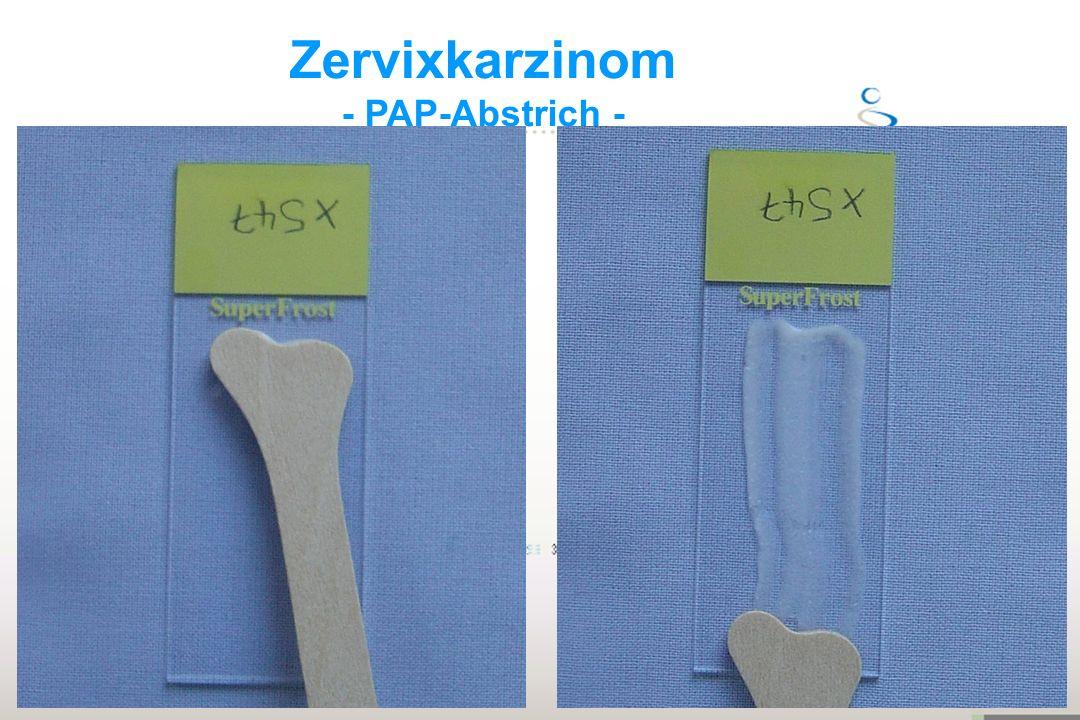 Zervixkarzinom - PAP-Abstrich -