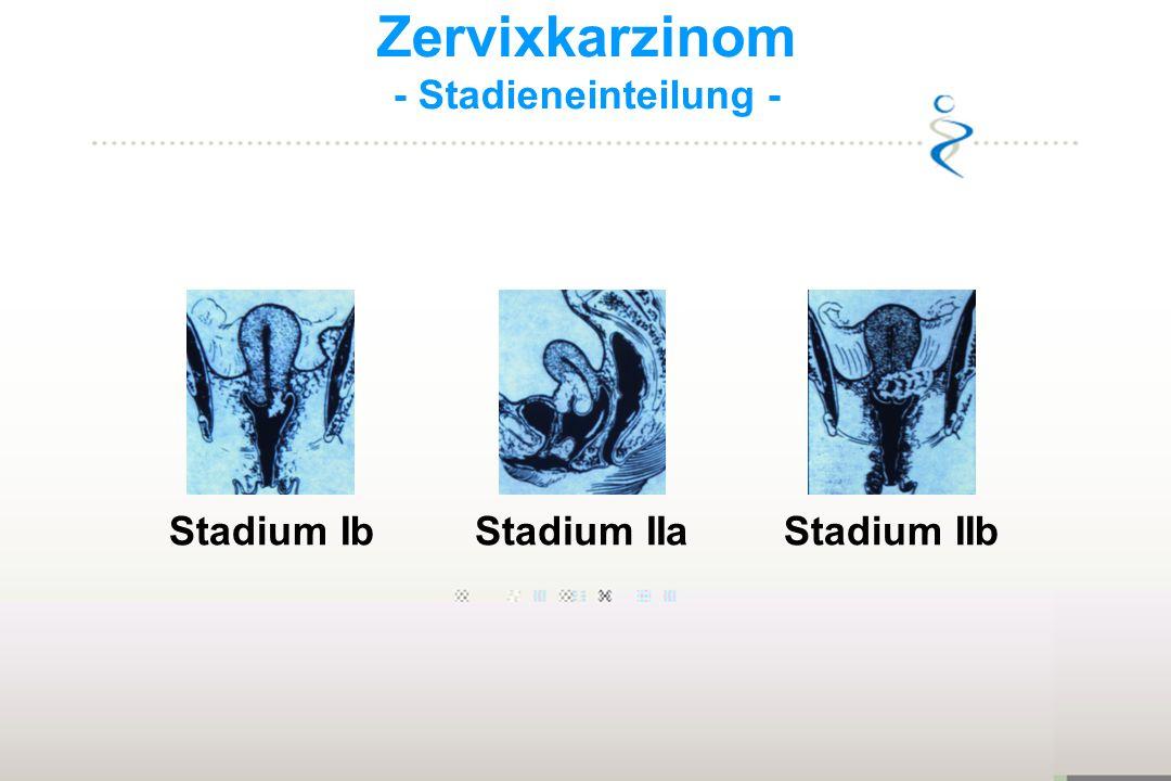 Zervixkarzinom - Stadieneinteilung - Stadium IbStadium IIbStadium IIa