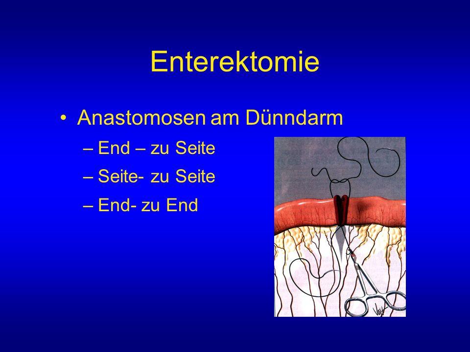 Anastomosen am Dünndarm –End – zu Seite –Seite- zu Seite –End- zu End