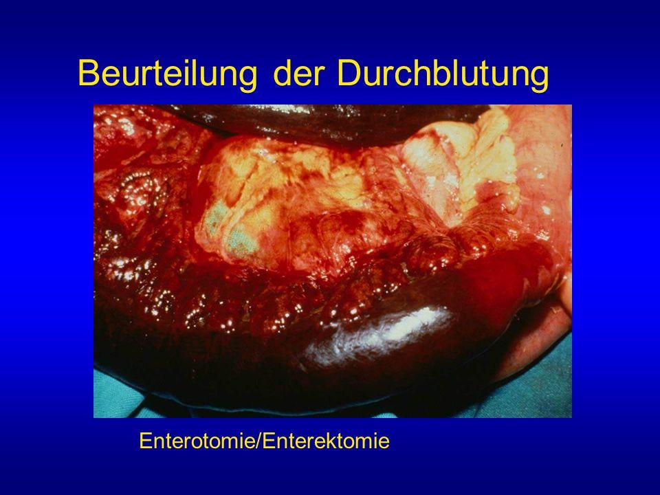 Enterotomie/Enterektomie Beurteilung der Durchblutung