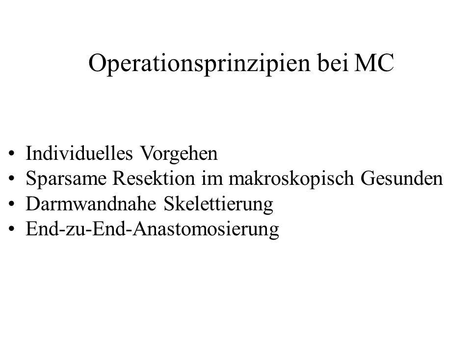 Operationsprinzipien bei MC Individuelles Vorgehen Sparsame Resektion im makroskopisch Gesunden Darmwandnahe Skelettierung End-zu-End-Anastomosierung