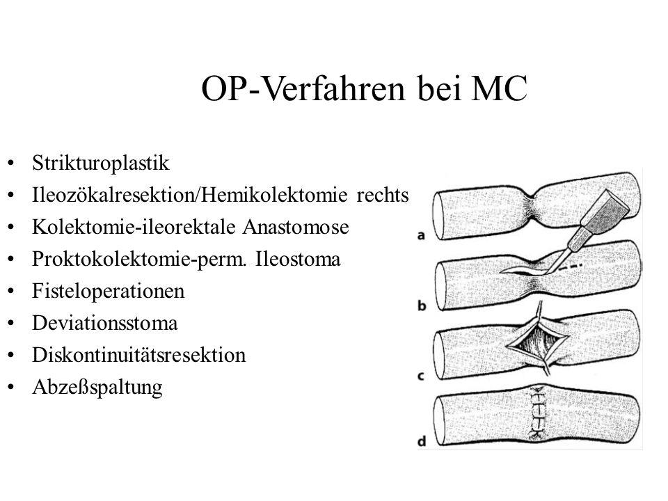 OP-Verfahren bei MC Strikturoplastik Ileozökalresektion/Hemikolektomie rechts Kolektomie-ileorektale Anastomose Proktokolektomie-perm. Ileostoma Fiste