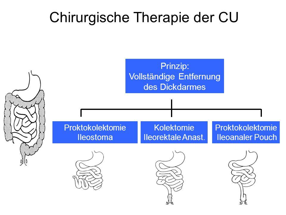 Chirurgische Therapie der CU Proktokolektomie Ileostoma Kolektomie Ileorektale Anast. Proktokolektomie Ileoanaler Pouch Prinzip: Vollständige Entfernu