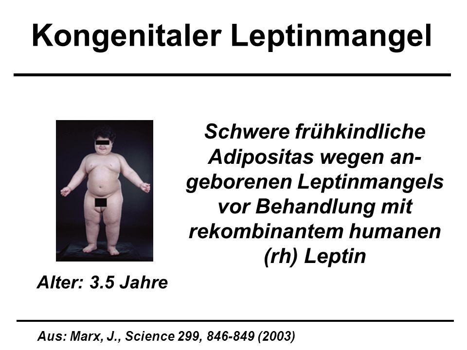 Kongenitaler Leptinmangel Aus: Marx, J., Science 299, 846-849 (2003) Schwere frühkindliche Adipositas wegen an- geborenen Leptinmangels vor Behandlung