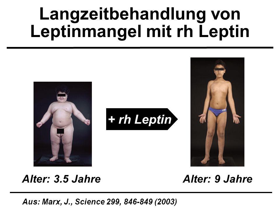 Langzeitbehandlung von Leptinmangel mit rh Leptin Aus: Marx, J., Science 299, 846-849 (2003) Alter: 3.5 JahreAlter: 9 Jahre + rh Leptin