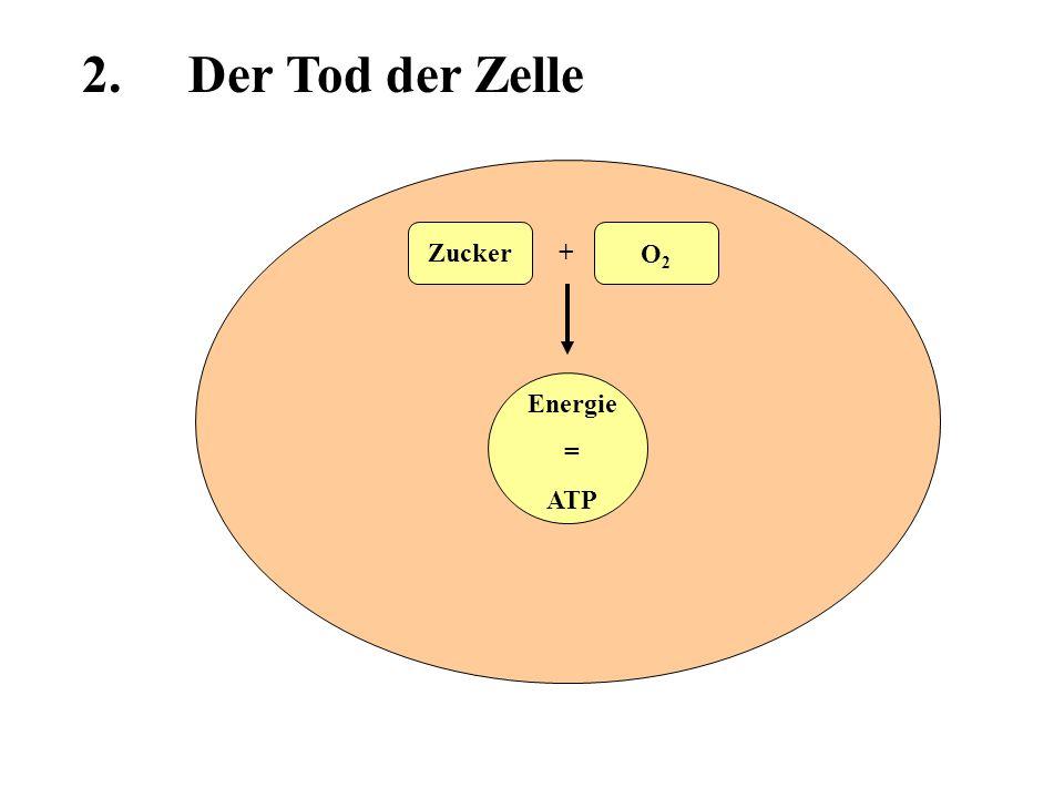 Energie = ATP Zucker O2O2 + 30% Na-K- ATPase Na + K+K+ 2.Der Tod der Zelle