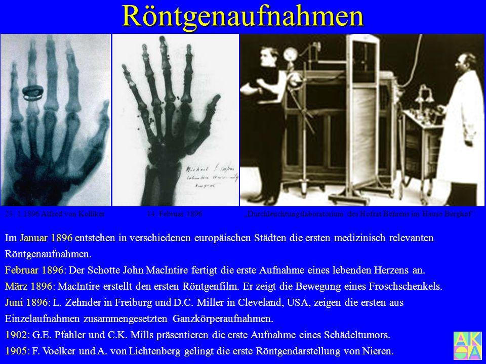 Röntgenaufnahmen Hand von Bertha Röntgen 22.12.1895 20 min. Durch- leuchtungszeit Am 18.12.1895 erschien bei der physikalisch-medizinischen Gesellscha