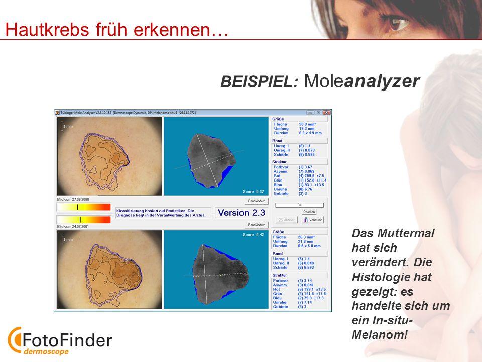 Hautkrebs früh erkennen… BEISPIEL: Moleanalyzer Das Muttermal hat sich verändert. Die Histologie hat gezeigt: es handelte sich um ein In-situ- Melanom