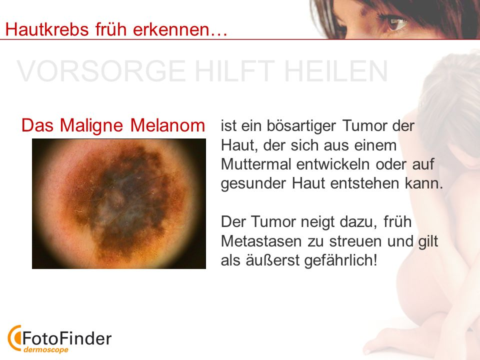 Hautkrebs früh erkennen… VORSORGE HILFT HEILEN ist ein bösartiger Tumor der Haut, der sich aus einem Muttermal entwickeln oder auf gesunder Haut entst