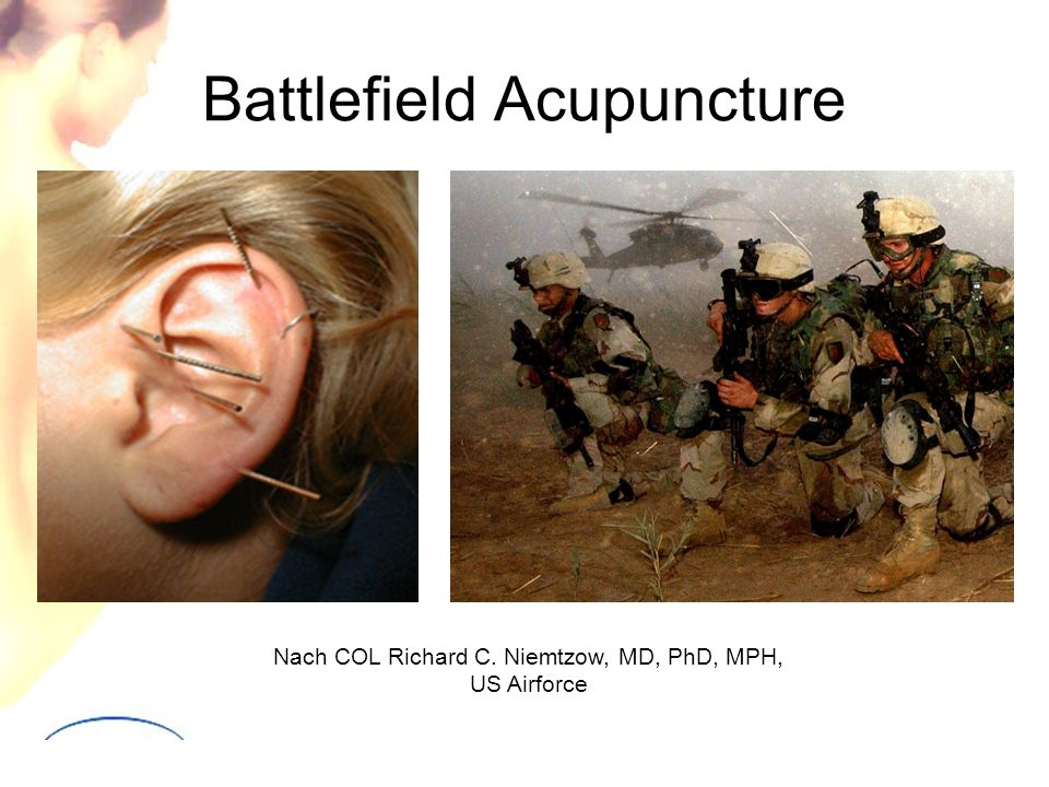 Battlefield Acupuncture Nach COL Richard C. Niemtzow, MD, PhD, MPH, US Airforce