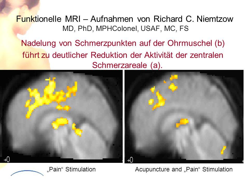 Funktionelle MRI – Aufnahmen von Richard C. Niemtzow MD, PhD, MPHColonel, USAF, MC, FS Nadelung von Schmerzpunkten auf der Ohrmuschel (b) führt zu deu