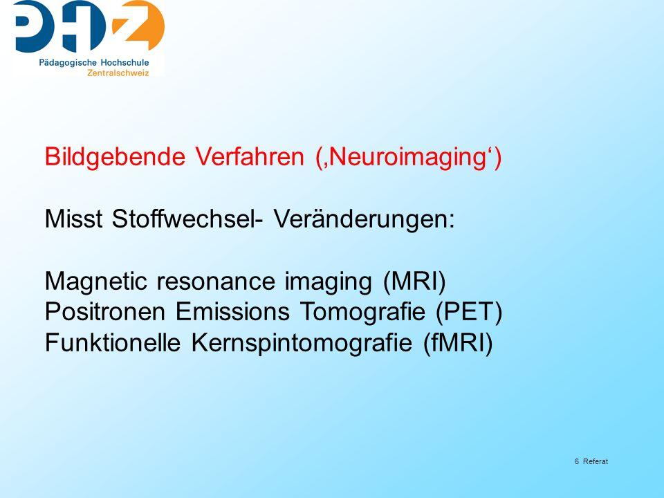 6 Referat Bildgebende Verfahren (Neuroimaging) Misst Stoffwechsel- Veränderungen: Magnetic resonance imaging (MRI) Positronen Emissions Tomografie (PE