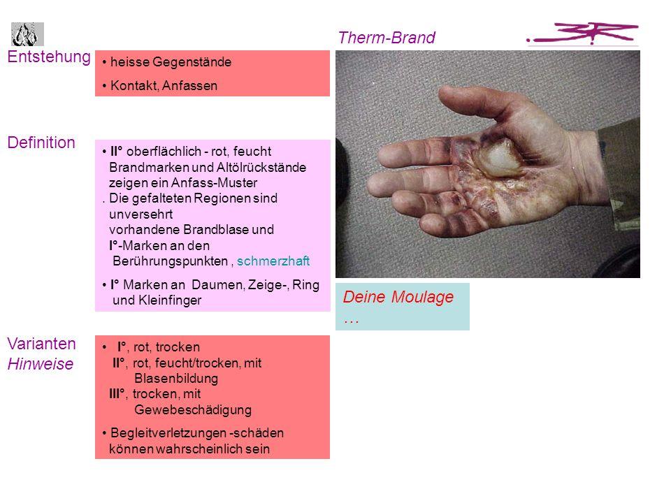Entstehung Definition Therm-Brand Varianten Hinweise heisse Gegenstände Kontakt, Anfassen II° oberflächlich - rot, feucht Brandmarken und Altölrückstä