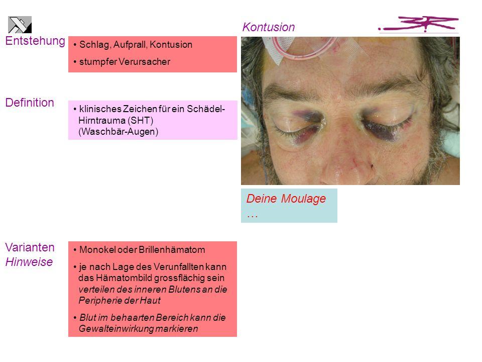klinisches Zeichen für ein Schädel- Hirntrauma (SHT) (Waschbär-Augen) Schlag, Aufprall, Kontusion stumpfer Verursacher Entstehung Definition Kontusion