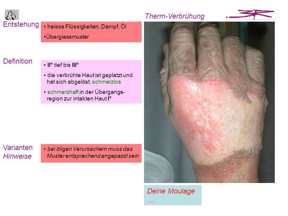 Entstehung Definition Therm-Brand Varianten Hinweise je nach Wegziehreflex sind Begleit- verletzungen anzunehmen z.