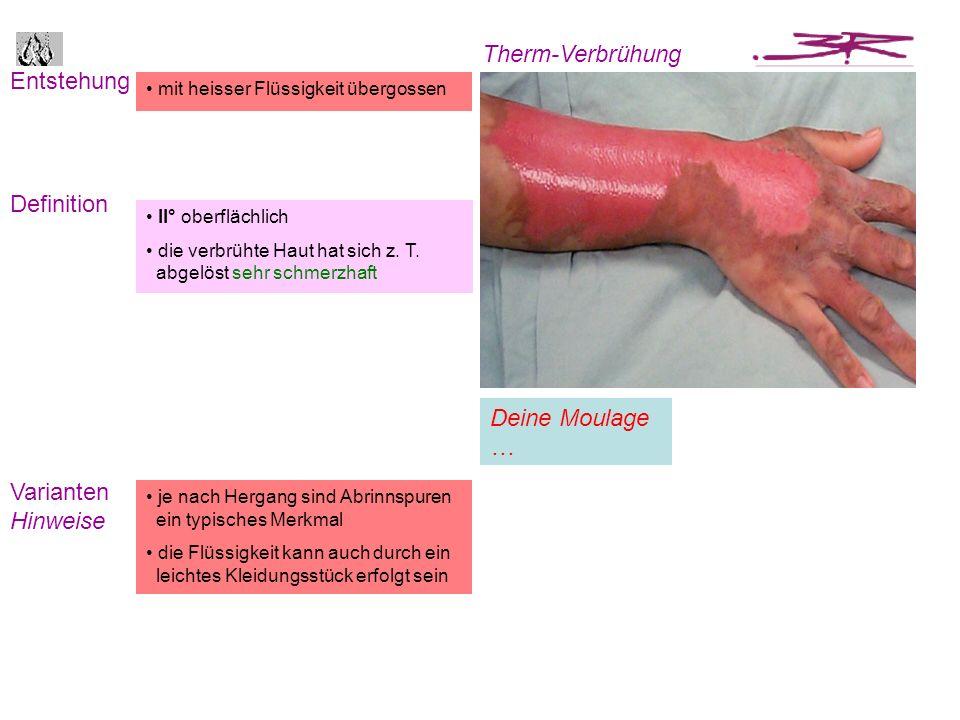 Entstehung Definition Therm-Verbrühung Varianten Hinweise je nach Hergang sind Abrinnspuren ein typisches Merkmal die Flüssigkeit kann auch durch ein