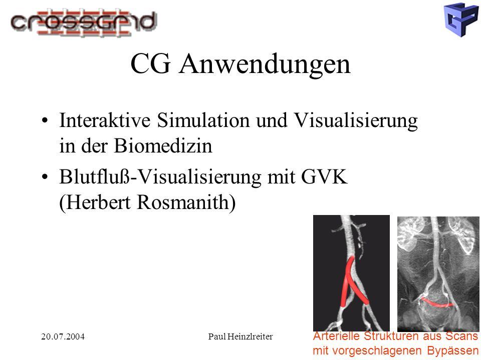 20.07.2004Paul Heinzlreiter CG Anwendungen Interaktive Simulation und Visualisierung in der Biomedizin Blutfluß-Visualisierung mit GVK (Herbert Rosmanith) Arterielle Strukturen aus Scans mit vorgeschlagenen Bypässen