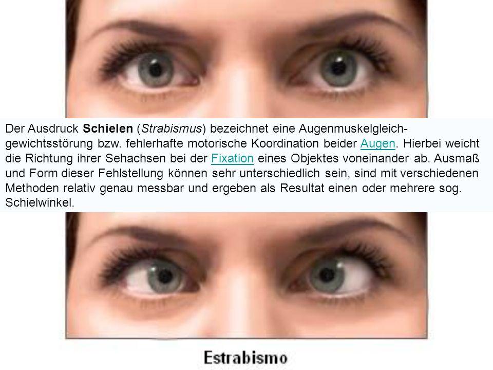 Der Ausdruck Schielen (Strabismus) bezeichnet eine Augenmuskelgleich- gewichtsstörung bzw.