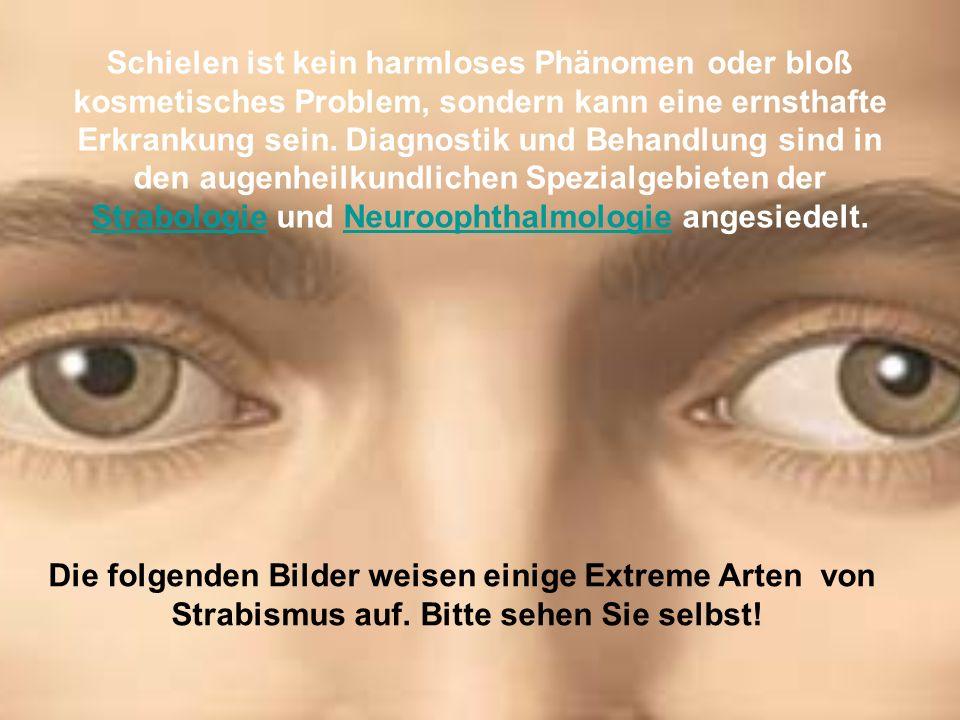 Schielen ist kein harmloses Phänomen oder bloß kosmetisches Problem, sondern kann eine ernsthafte Erkrankung sein.