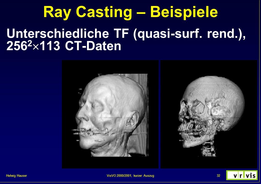 Helwig Hauser 32VisVO 2000/2001, kurzer Auszug Ray Casting – Beispiele Unterschiedliche TF (quasi-surf. rend.), 256 2 113 CT-Daten