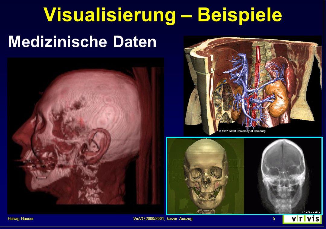 Helwig Hauser 5VisVO 2000/2001, kurzer Auszug Visualisierung – Beispiele Medizinische Daten
