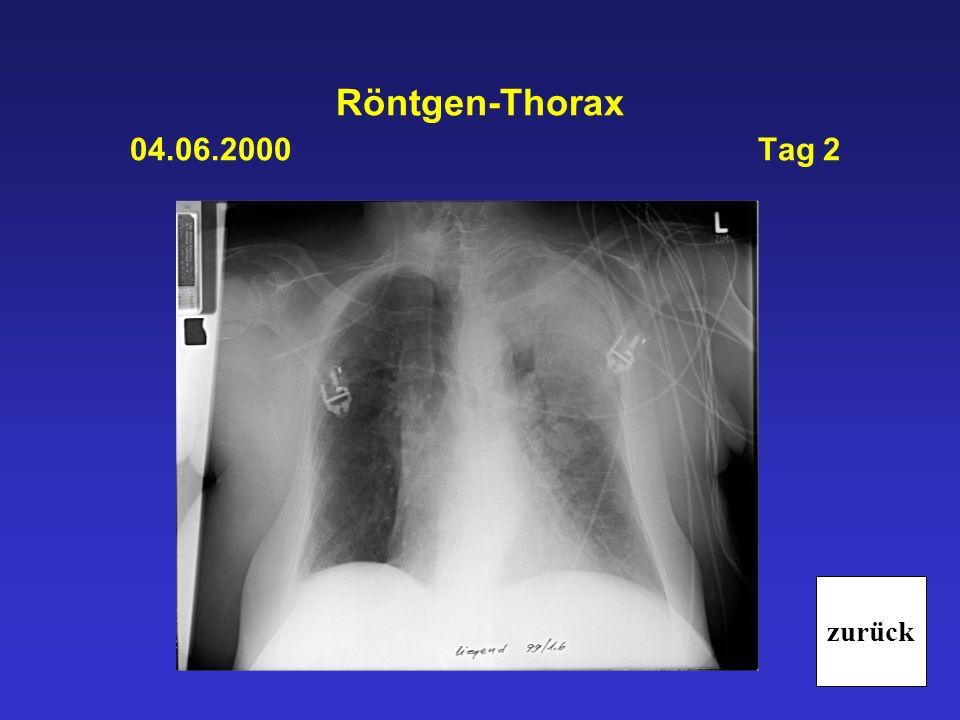 Röntgen-Thorax 04.06.2000 Tag 2 zurück