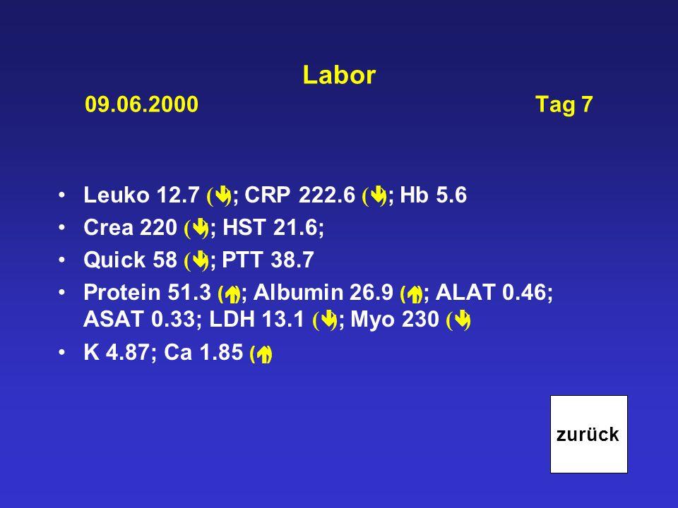 Labor 09.06.2000 Tag 7 Leuko 12.7 ( ) ; CRP 222.6 ( ) ; Hb 5.6 Crea 220 ( ) ; HST 21.6; Quick 58 ( ) ; PTT 38.7 Protein 51.3 ( ) ; Albumin 26.9 ( ) ;