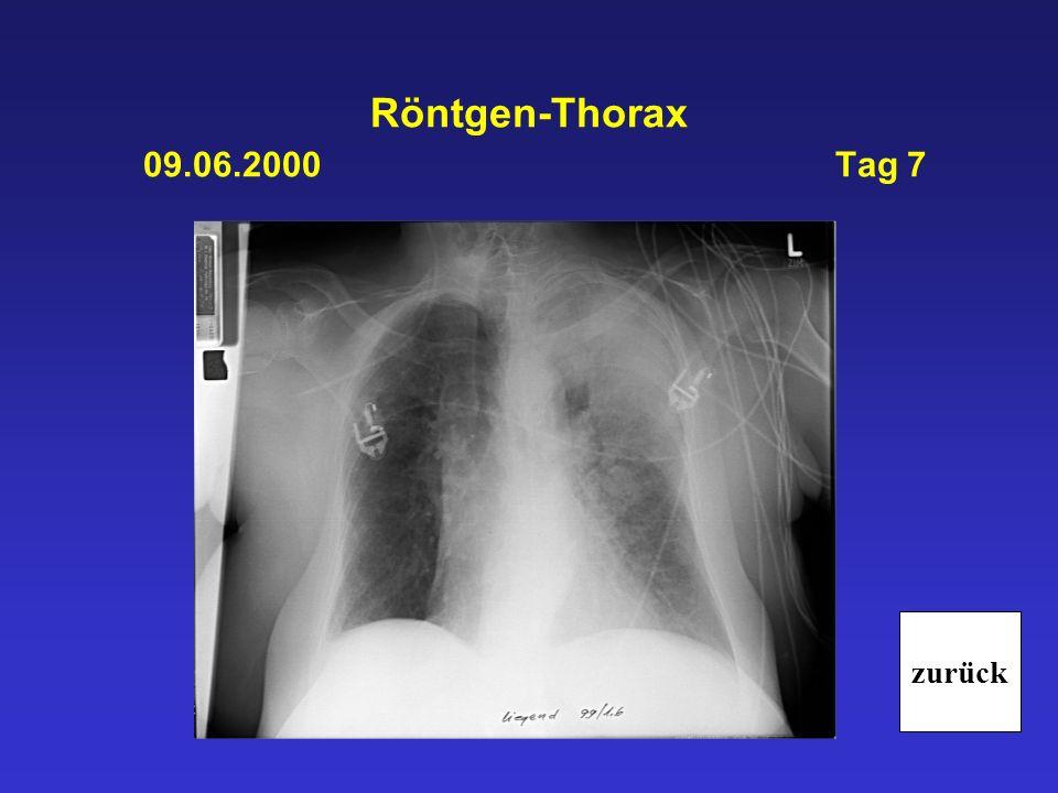 Röntgen-Thorax 09.06.2000 Tag 7 zurück