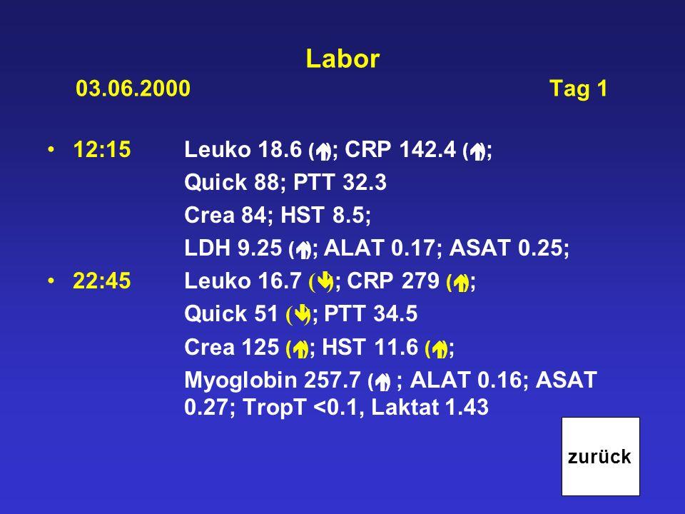 Labor 03.06.2000 Tag 1 12:15Leuko 18.6 ( ) ; CRP 142.4 ( ) ; Quick 88; PTT 32.3 Crea 84; HST 8.5; LDH 9.25 ( ) ; ALAT 0.17; ASAT 0.25; 22:45Leuko 16.7