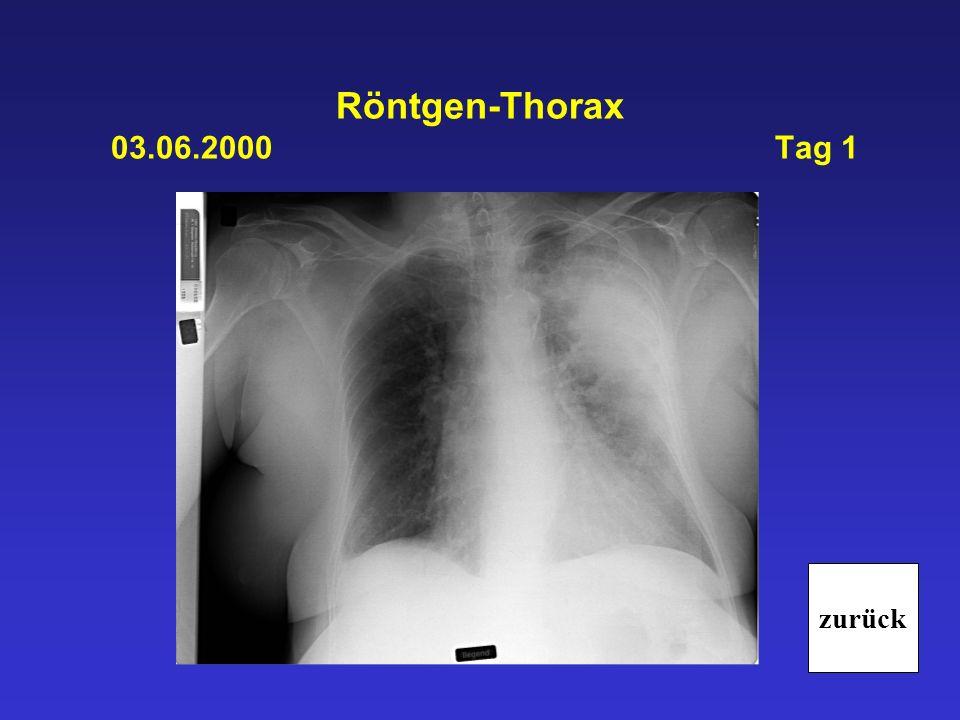 ITS 03.06.2000 Tag 1 Intubation und Beatmung (BIPAP-Modus): Beatmungsparameter: FiO2 70%, p max.