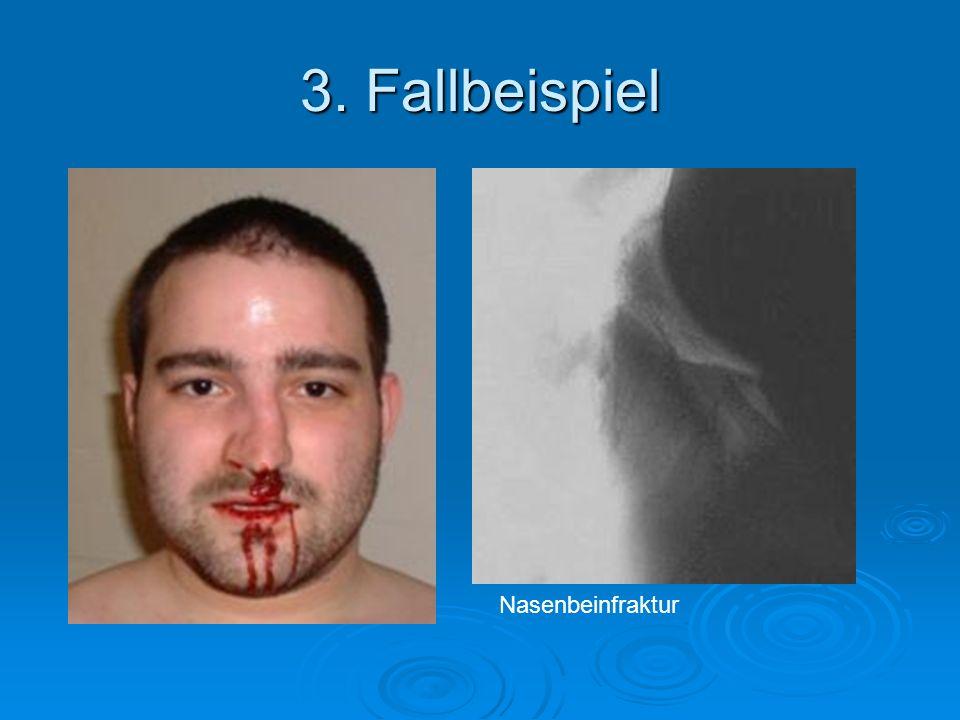 3. Fallbeispiel Nasenbeinfraktur
