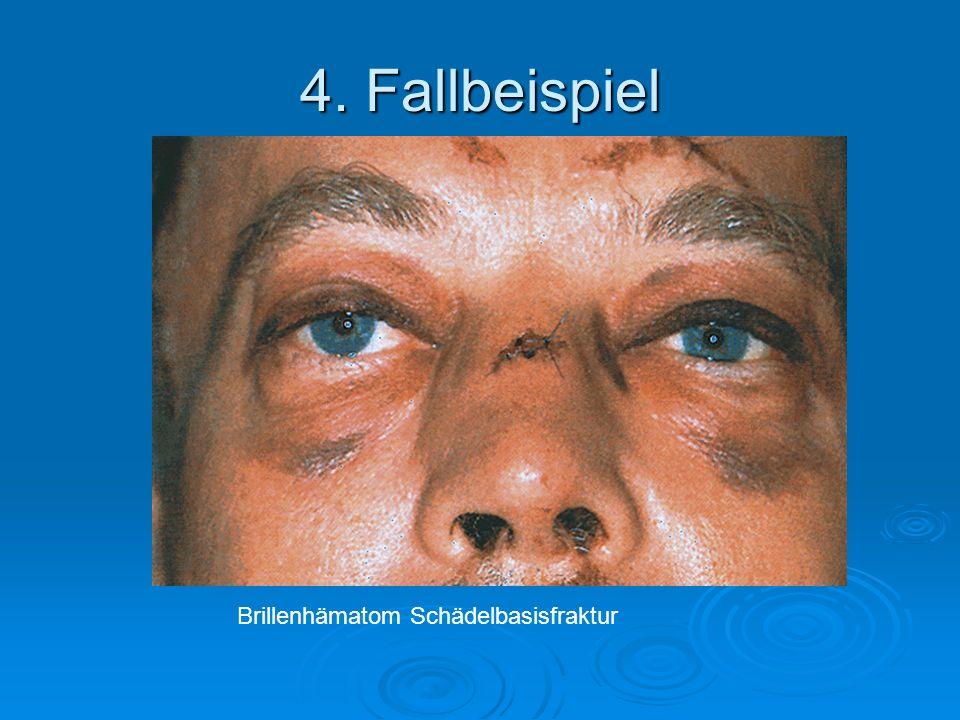 4. Fallbeispiel Brillenhämatom Schädelbasisfraktur