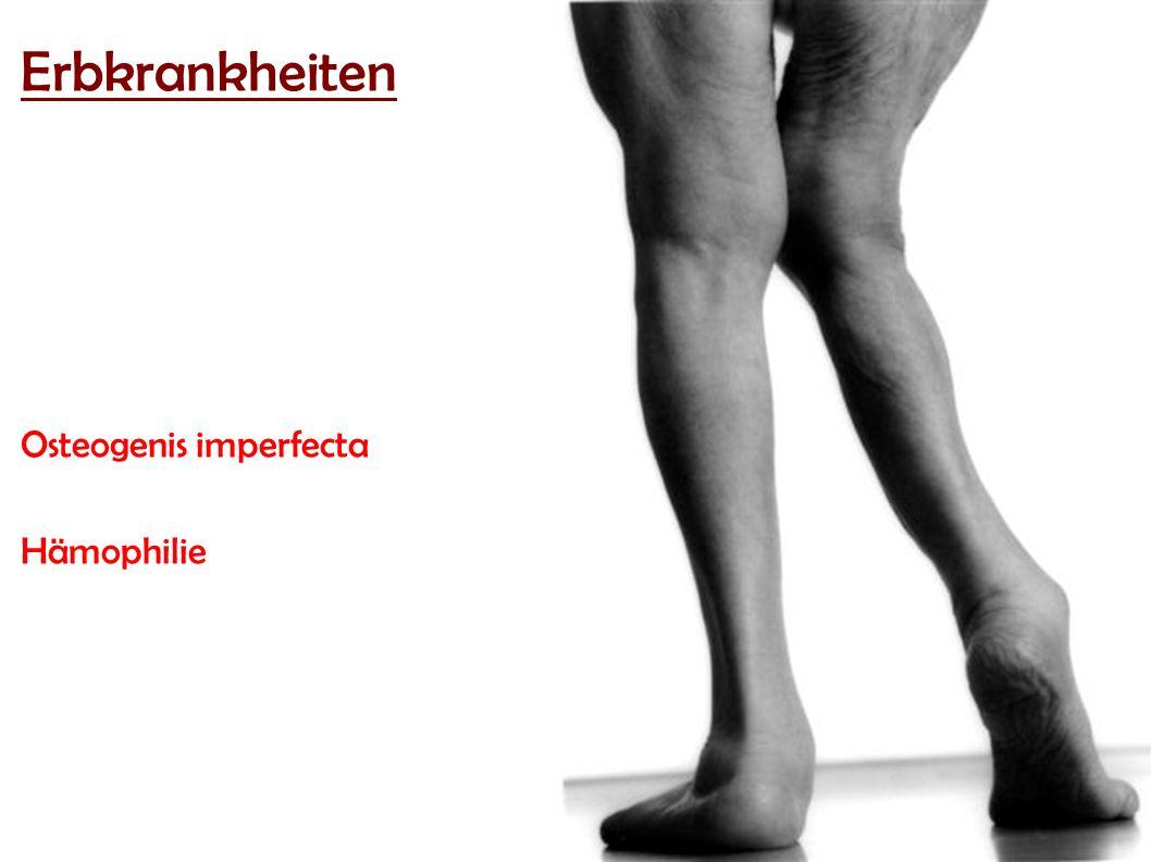 Erbkrankheiten Osteogenis imperfecta Hämophilie
