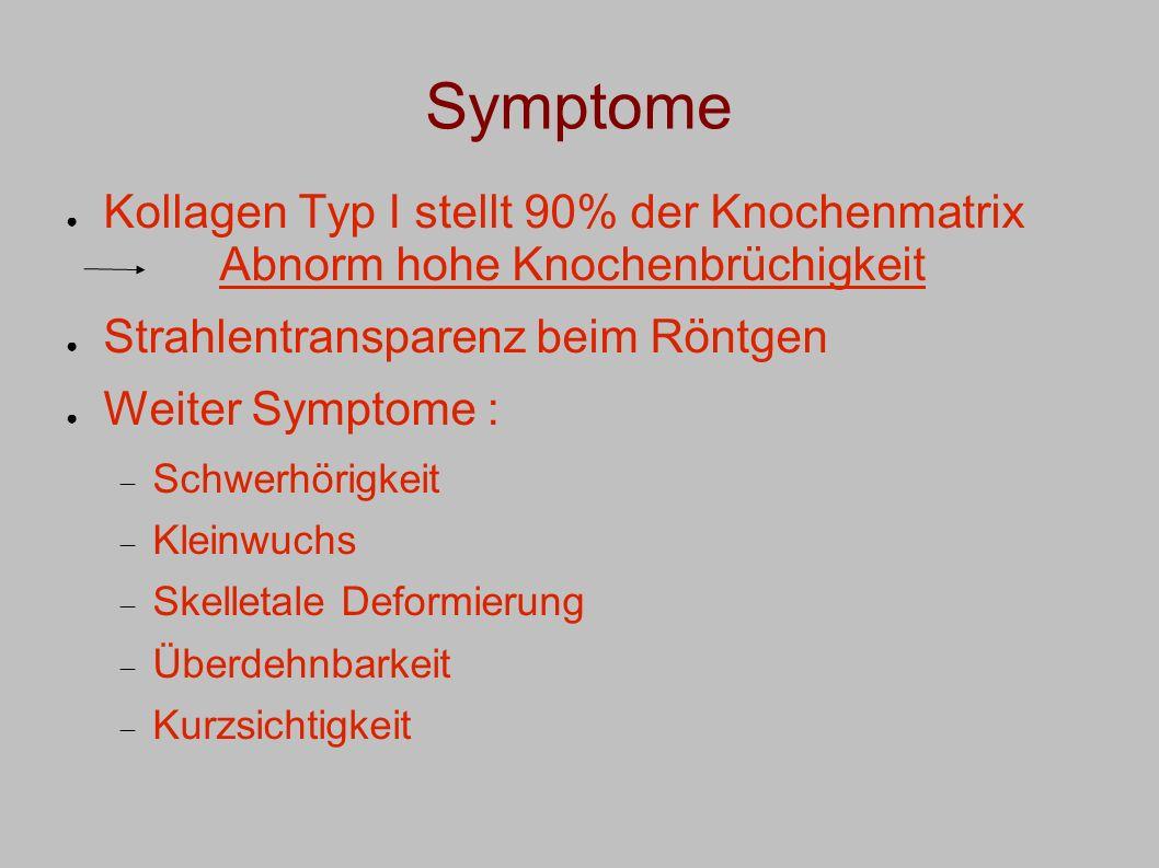 Symptome Kollagen Typ I stellt 90% der Knochenmatrix Abnorm hohe Knochenbrüchigkeit Strahlentransparenz beim Röntgen Weiter Symptome : Schwerhörigkeit