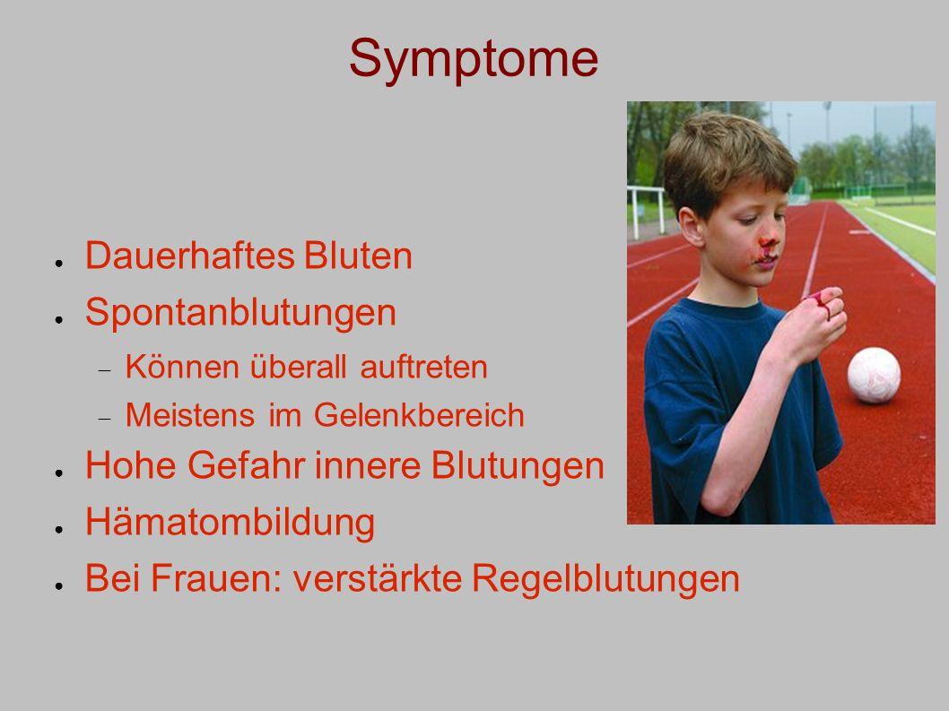 Symptome Dauerhaftes Bluten Spontanblutungen Können überall auftreten Meistens im Gelenkbereich Hohe Gefahr innere Blutungen Hämatombildung Bei Frauen