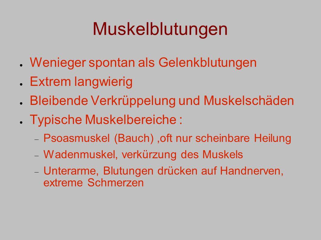 Muskelblutungen Wenieger spontan als Gelenkblutungen Extrem langwierig Bleibende Verkrüppelung und Muskelschäden Typische Muskelbereiche : Psoasmuskel