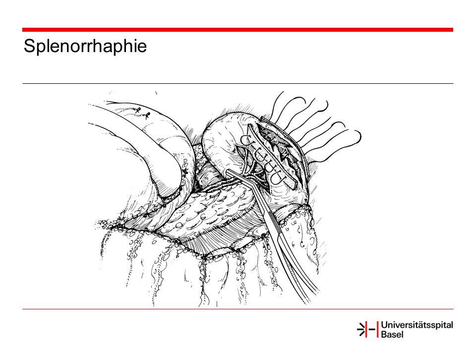 Splenorrhaphie