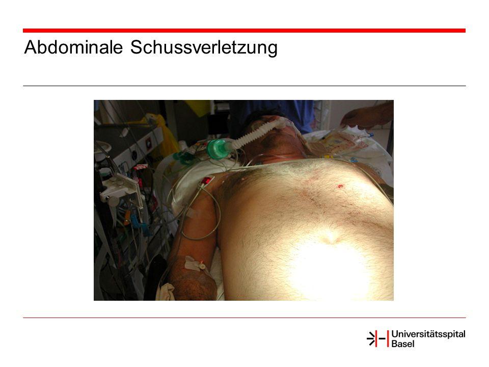 Abdominale Schussverletzung