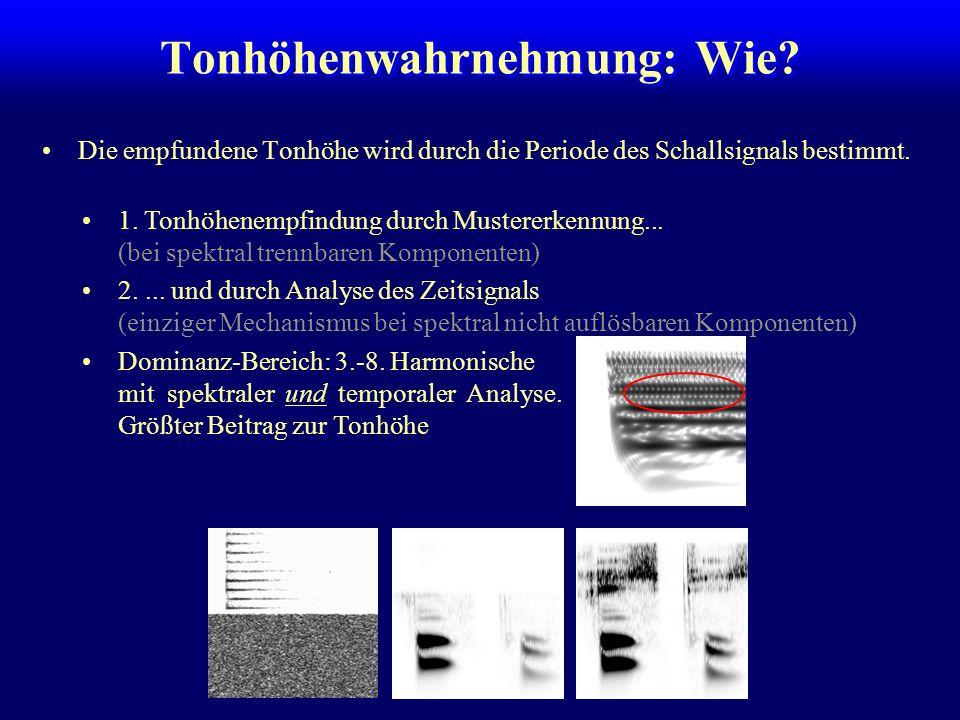Spektraler und temporaler Code SpektrogrammErregungsmuster in der Cochlea