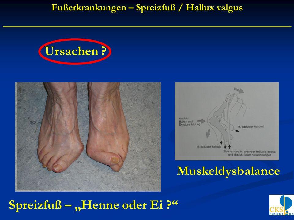 Ursachen ? Muskeldysbalance Fußerkrankungen – Spreizfuß / Hallux valgus ____________________________________________ Spreizfuß – Henne oder Ei ?