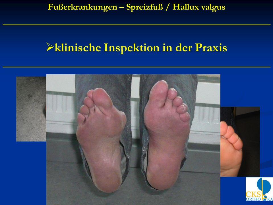 klinische Inspektion in der Praxis ____________________________________________ Fußerkrankungen – Spreizfuß / Hallux valgus __________________________