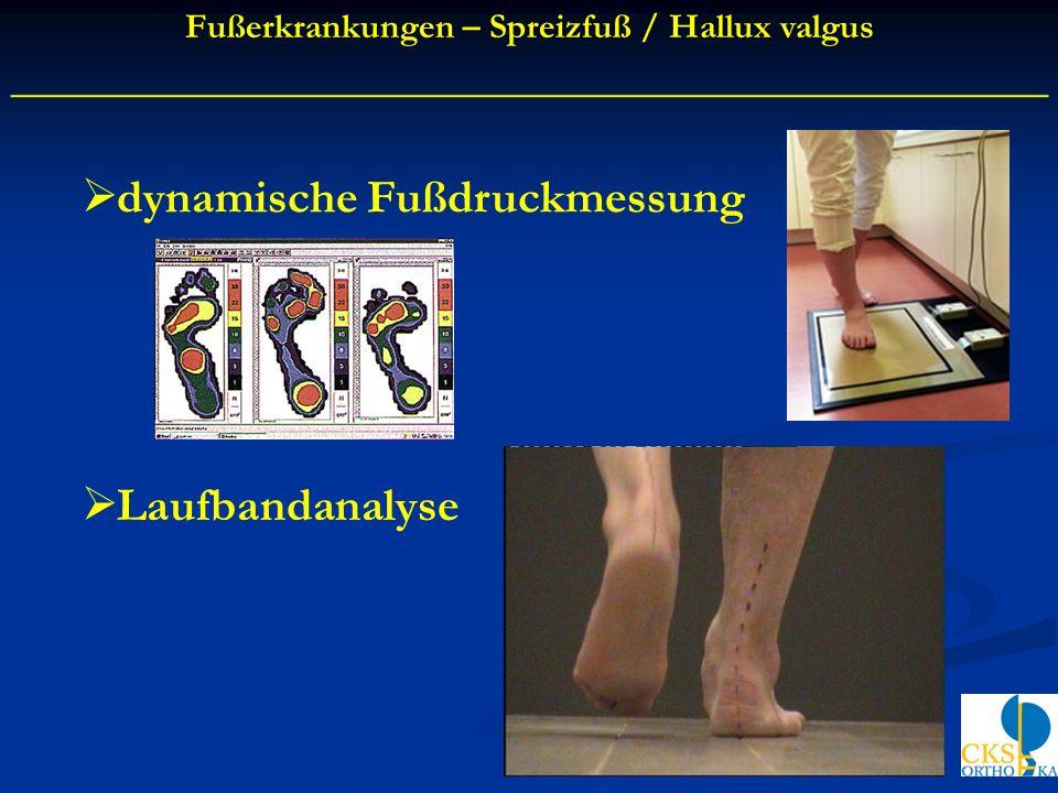 dynamische Fußdruckmessung Laufbandanalyse Fußerkrankungen – Spreizfuß / Hallux valgus ____________________________________________