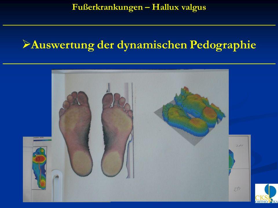 Auswertung der dynamischen Pedographie ____________________________________________ Fußerkrankungen – Hallux valgus __________________________________