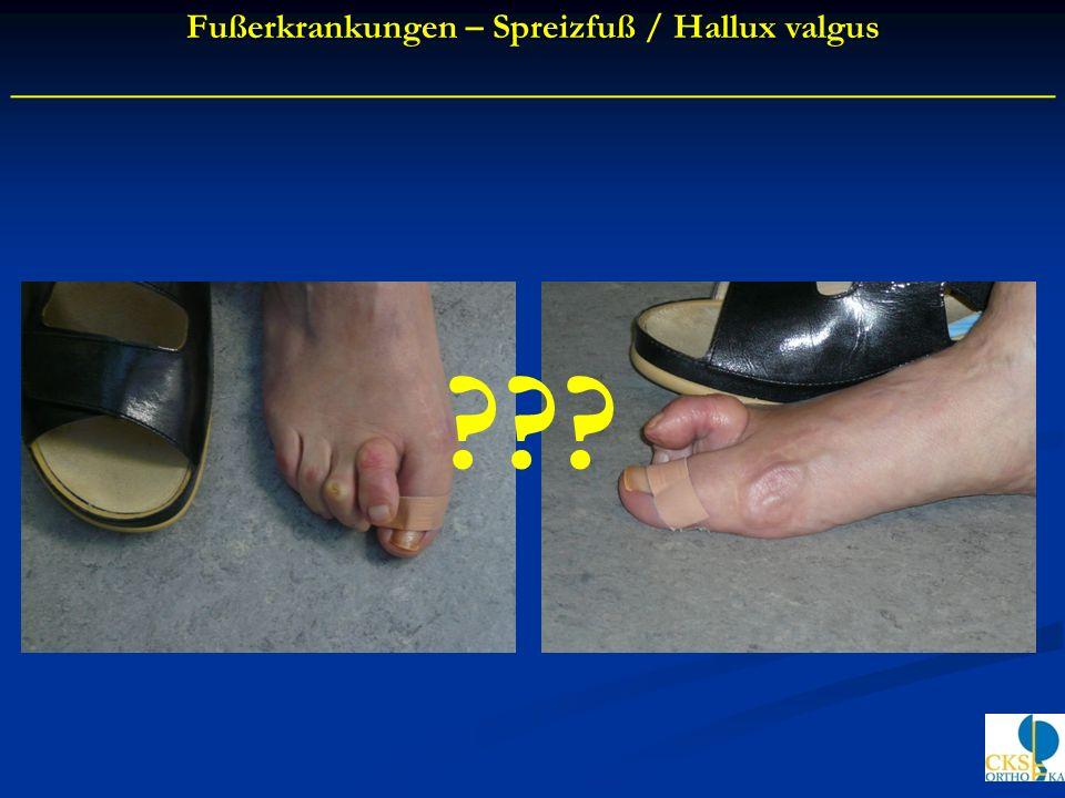 Fußerkrankungen – Spreizfuß / Hallux valgus ____________________________________________ ???