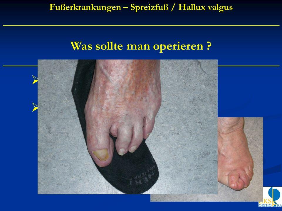 Was sollte man operieren ? ____________________________________________ Hallux valgus / Großzehenballen Krallen - / Hammerzehe Fußerkrankungen – Sprei