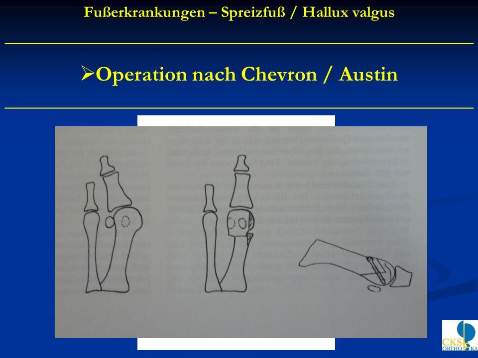Operation nach Chevron / Austin ____________________________________________ Fußerkrankungen – Spreizfuß / Hallux valgus _____________________________